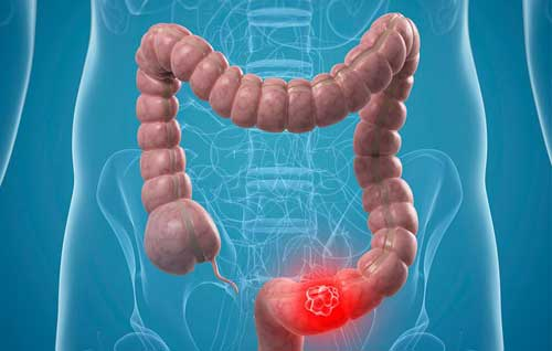 New Guidelines: Start Colorectal Cancer Screening Earlier