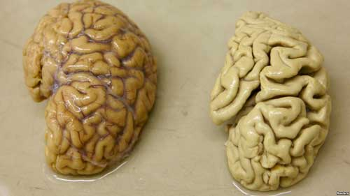 File image - One hemisphere of a healthy brain (L) is pictured next to one hemisphere of a brain of a person suffering from Alzheimer disease.